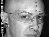 haworth_implants3.jpg